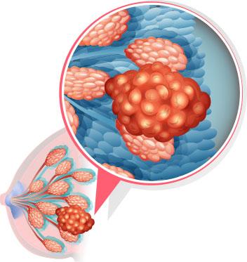 Купить крем-воск ЗДОРОВ от мастопатии