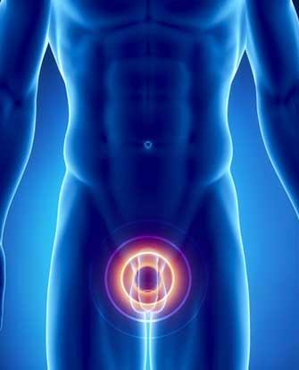 лечение мужского простатита народными средствами