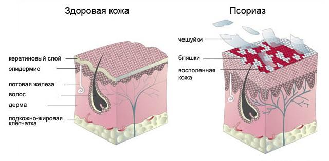 psoriaz-zdorov