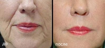 Крем против морщин на лице - ЗДОРОВ