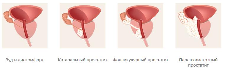 Крем ЗДОРОВ для лечения простатита