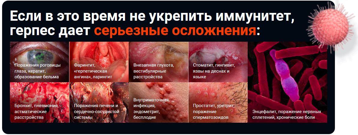 Эликсир ЗДОРОВ от герпеса