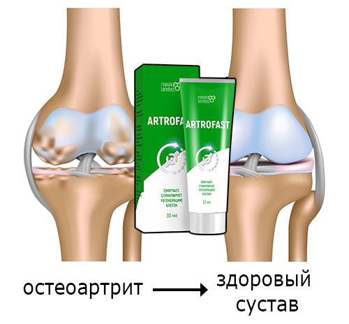 Артрофаст от остеоартрита