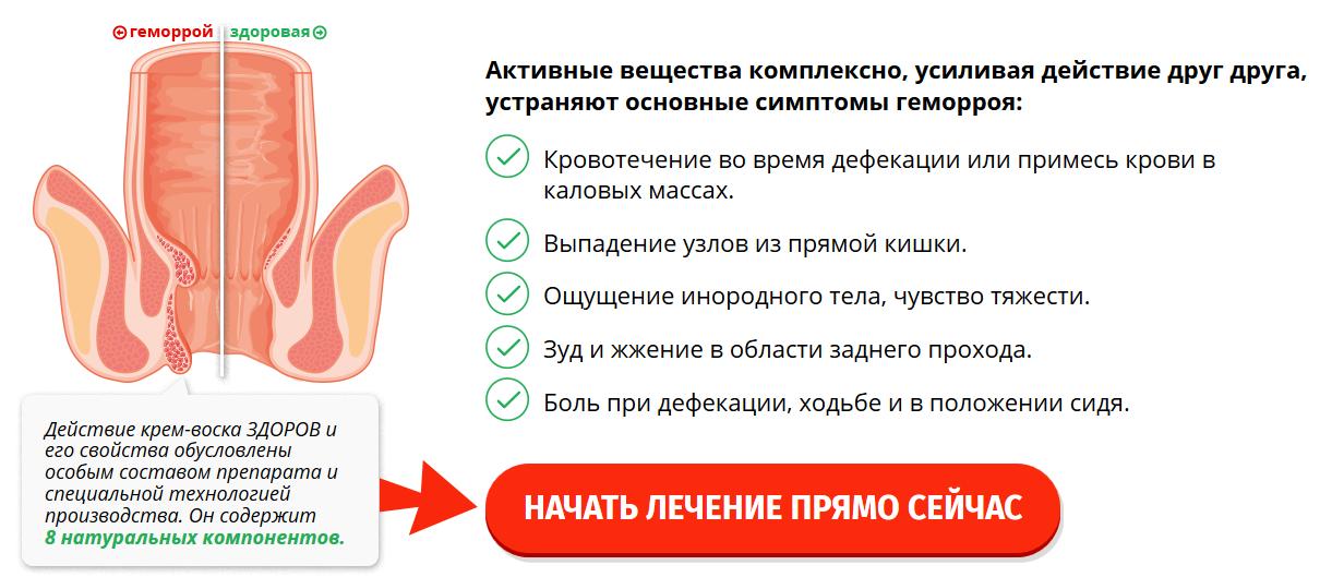 Как крем ЗДОРОВ помогает при геморрое