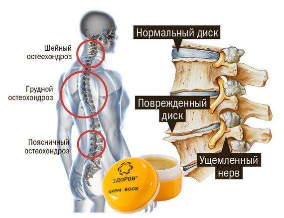 """Крем-воск """"Здоров"""" от остеохондроза"""