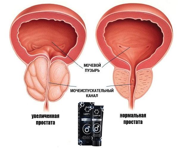 Крем-воск ЗДОРОВ от простатита