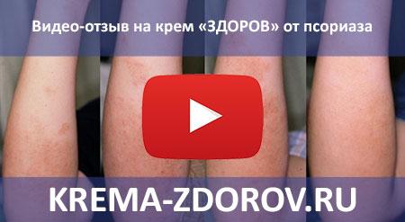 Видео-отзыв на крем ЗДОРОВ от псориаза